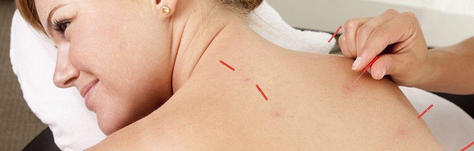 Portes obertes d'acupuntura header